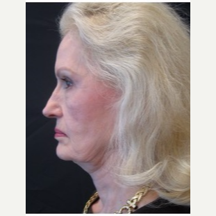 65-74 year old woman treated with Facelift before 3088557