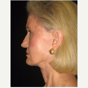 65-74 year old woman treated with Facelift after 3088557