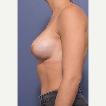 25-34 year old woman treated with Breast Augmentation after 3381401