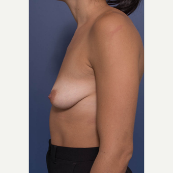 25-34 year old woman treated with Breast Augmentation before 3381401