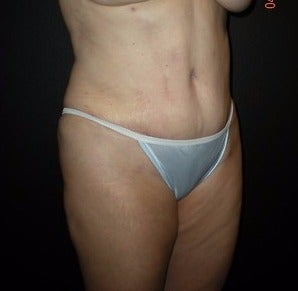 52 year old woman treated with Liposuction and Tummy Tuck after 1784821