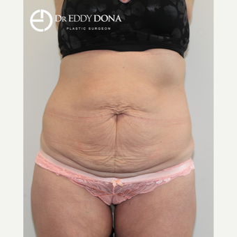 35-44 year old man treated with Tummy Tuck before 2862503
