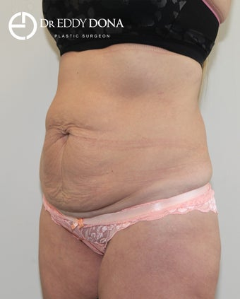 35-44 year old man treated with Tummy Tuck 2862503