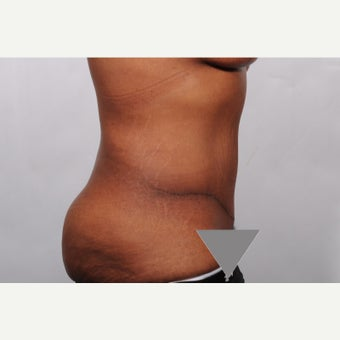 No Drain Tummy Tuck after 2527262
