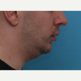 18-24 year old man treated with Orthognathic Surgery before 3581515