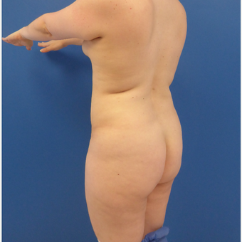 27 y/o female - 1500cc per side  Lipo abdomen, flanks, back with fat transfer to the buttocks before 3433793