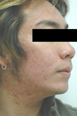 Photodynamic Therapy for Acne after 83005