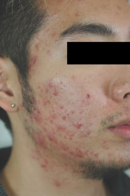 Photodynamic Therapy for Acne before 83005