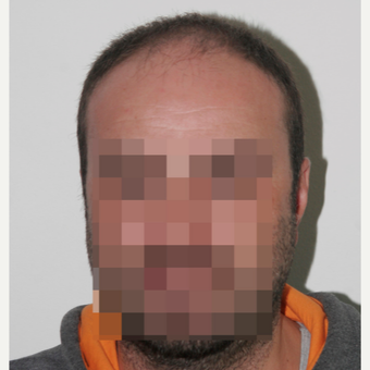 33 years old man treated with FUE Hair Transplant before 3068907
