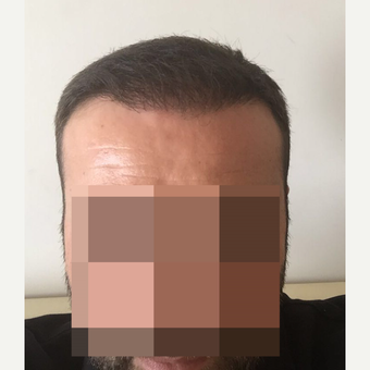 33 years old man treated with FUE Hair Transplant after 3068907