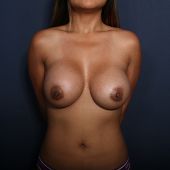 25-34 year old woman treated with Breast Augmentation after 3129013