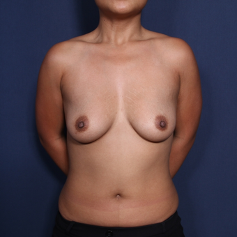25-34 year old woman treated with Breast Augmentation before 3129013