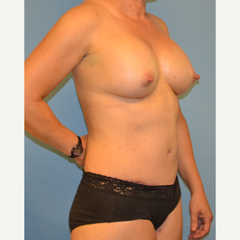 41 year old woman treated with breast augmentation and abdominoplasty after 3095626