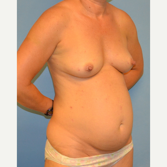 41 year old woman treated with breast augmentation and abdominoplasty before 3095626
