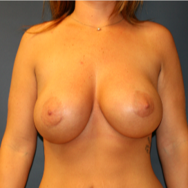 26 year old woman treated with Breast Implants after 2989642