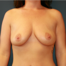 26 year old woman treated with Breast Implants before 2989642