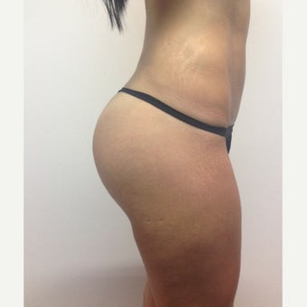 25-34 year old woman treated with Brazilian Butt Lift after 1965866