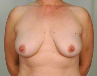 42 year old woman treated with Breast Augmentation before 3026477