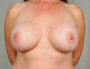 42 year old woman treated with Breast Augmentation after 3026477
