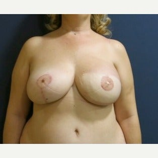 55-64 year old woman treated with Breast Reconstruction after 2264268