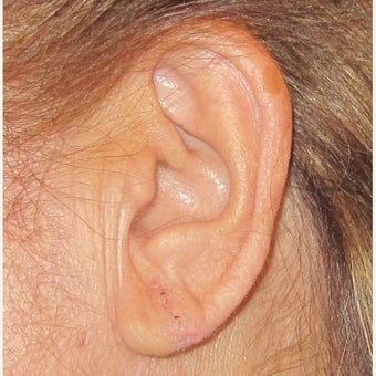 45-54 year old woman treated with Ear Lobe Surgery after 2576815