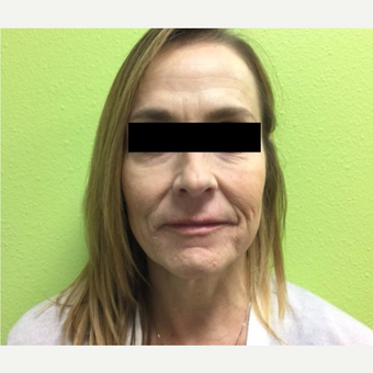 45-54 year old woman treated with Infini RF before 3816770