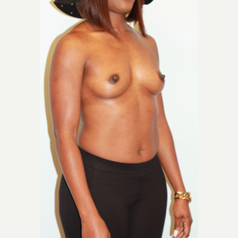 25-34 year old woman treated with Breast Augmentation before 3027175