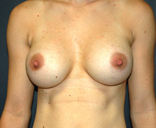 Breast Implants after 3545140