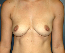 Breast Implants before 3545140