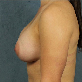 Breast Implants after 3033612