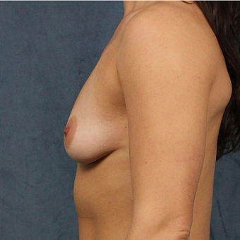 Breast Implants before 3033612
