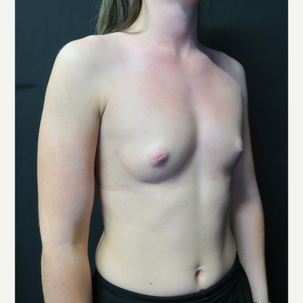 18-24 year old woman treated with Breast Augmentation before 3568533