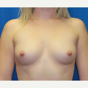 25-34 year old woman treated with Breast Augmentation before 3696387