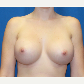 25-34 year old woman treated with Breast Augmentation after 3696387