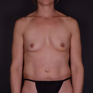 35-44 year old woman treated with Breast Augmentation before 3738188