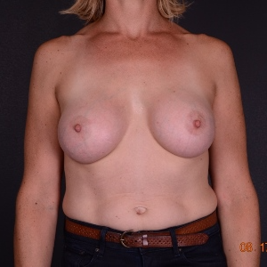 35-44 year old woman treated with Breast Augmentation after 3738188