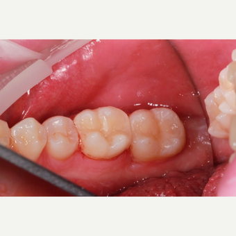 White composite fillings - Back teeth after 3096753