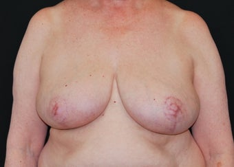 Breast Reduction after 949238