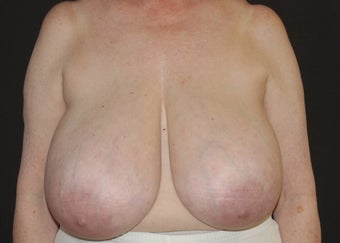 Breast Reduction before 949238