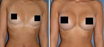 Breast Implants before 1108353