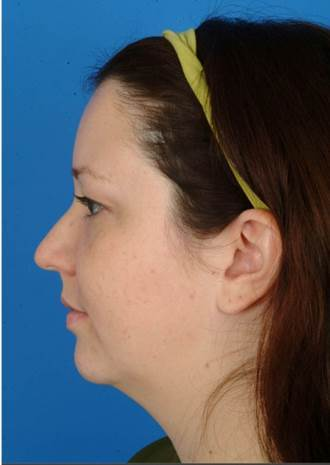 29 year old treated with Ultherapy for more definition in the neck and jawline and lift of the brows. before 1173979