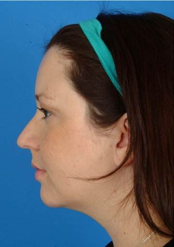 29 year old treated with Ultherapy for more definition in the neck and jawline and lift of the brows. after 1173979