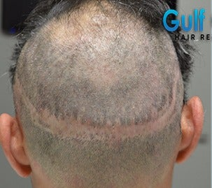 35-44 year old man treated with FUE Hair Transplant before 3604730