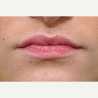 18-24 year old woman treated with Lip Augmentation before 3135198