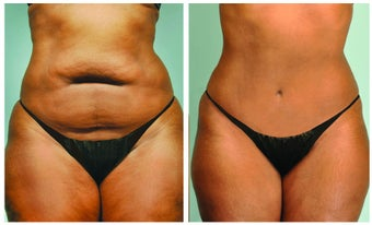 Abdominoplasty and Smartlipo of the abdomen and hips before 592978