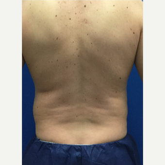 35-44 year old man treated with Liposuction of the love handles before 3071911
