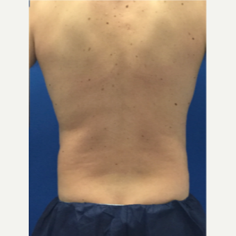 35-44 year old man treated with Liposuction of the love handles after 3071911