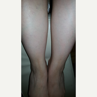 25-34 year old woman treated with Liposuction Revision before 2681269