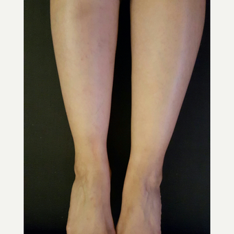 25-34 year old woman treated with Liposuction Revision after 2681269