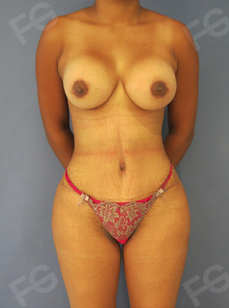 31 y/o female who used to have a great body, but pregnancy disrupted her aesthetic appearance